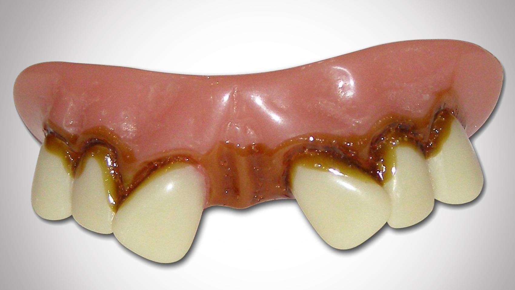 hillbilly-teeth